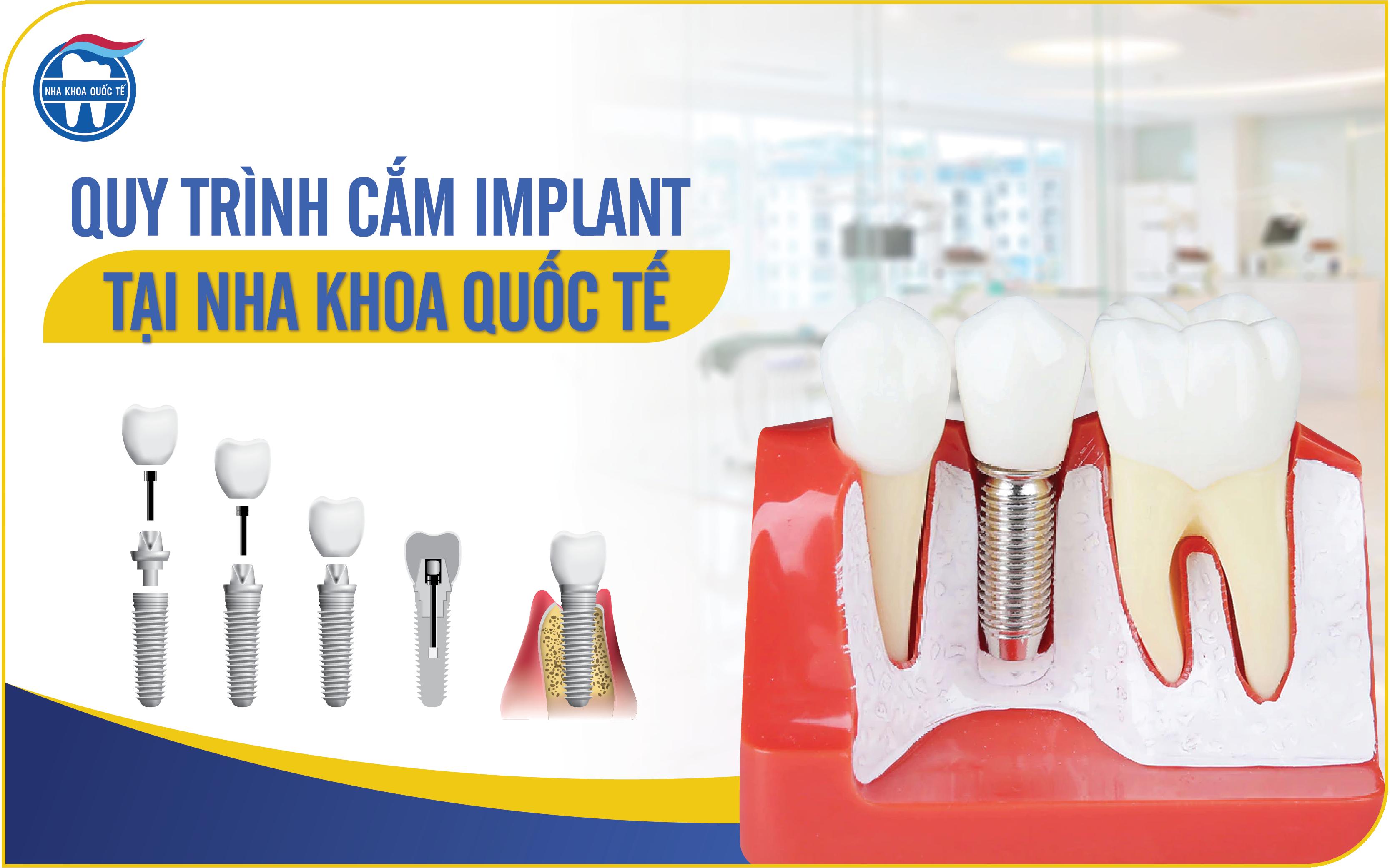 Quy trình cắm Implant tại Nha khoa Quốc tế