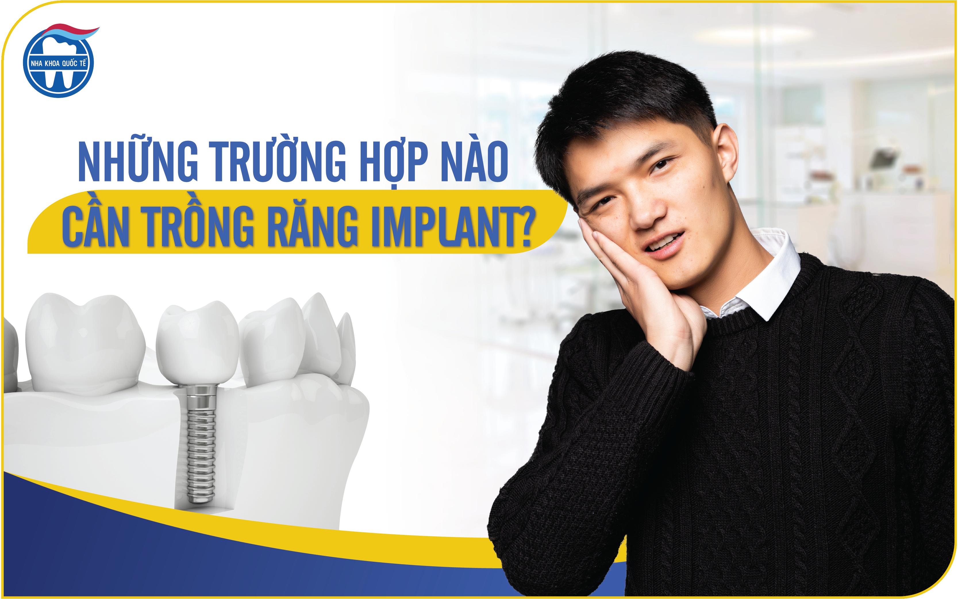 Những trường hợp nào cần trồng răng Implant?