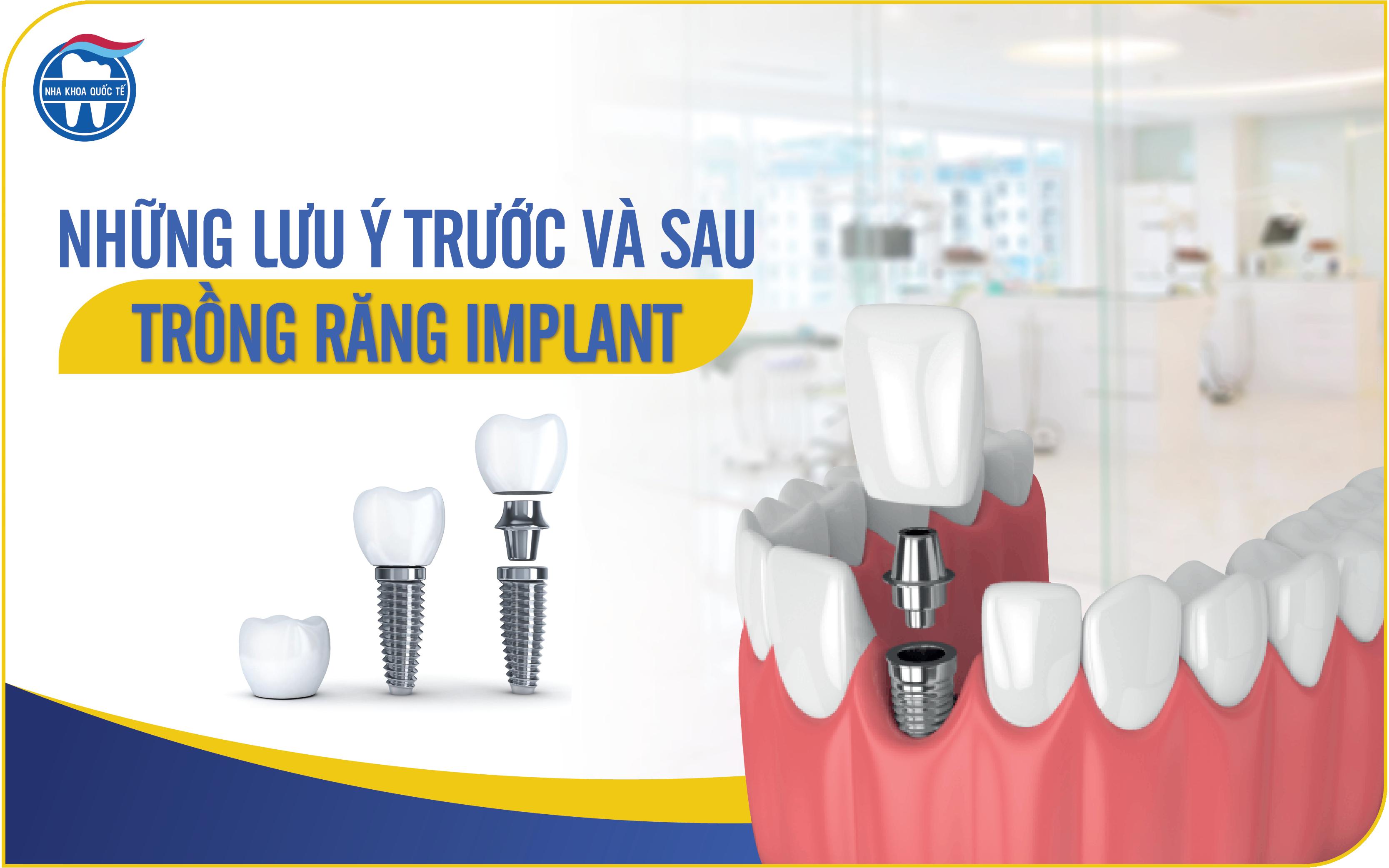 Những  lưu ý trước và sau khi cắm Implant