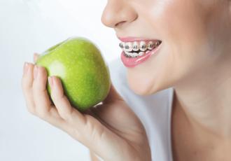 Niềng răng nên ăn gì, kiêng gì?